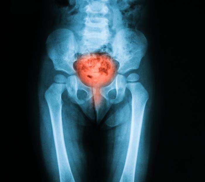 Pelvic Pain Foundation - Bladder Pain